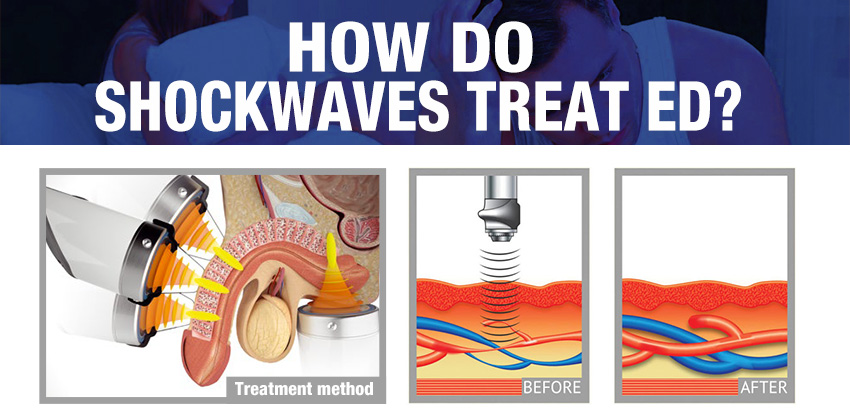 Low Intensity extracorporeal shock wave theory