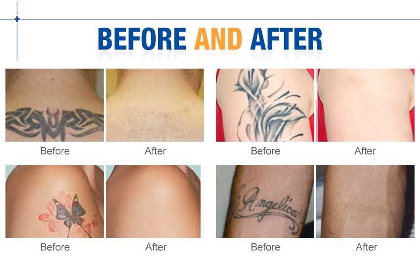 laser tattoo removal machine effect