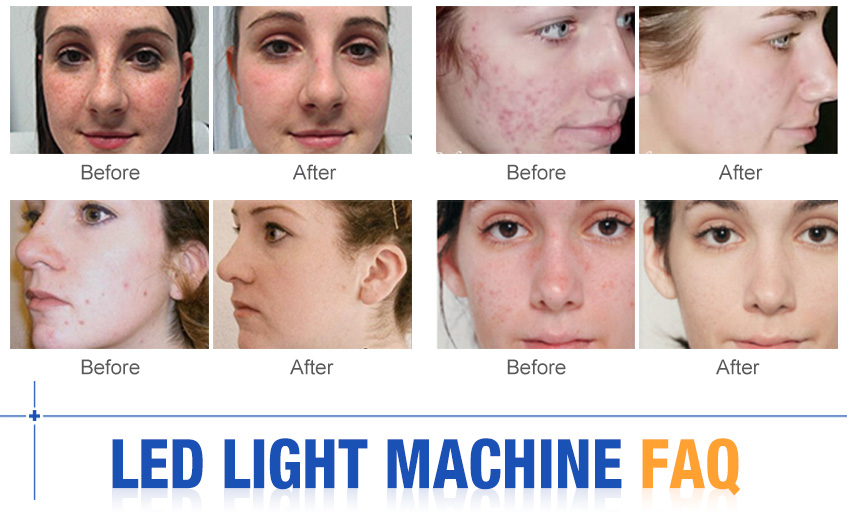 led facial machine effect