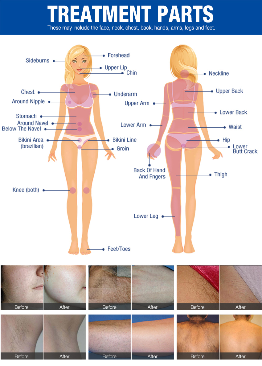 diode laser hair removal machine treatment area