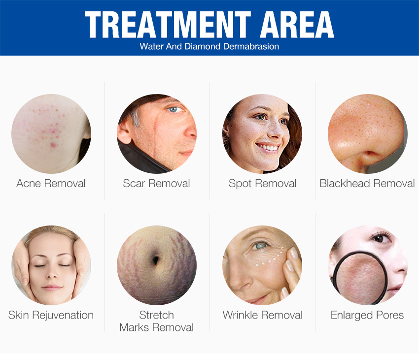 Professional microdermabrasion machine treatment area
