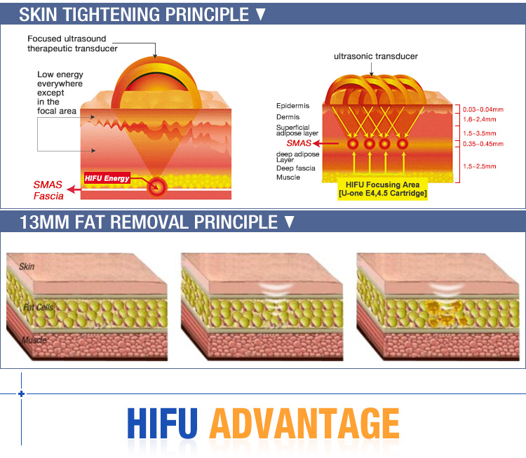 hifu ultrasound machine principle