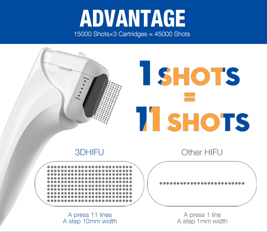 Hifu portable machine advantage