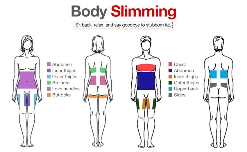 liposuction areas diagram a1 – mtimpex #11