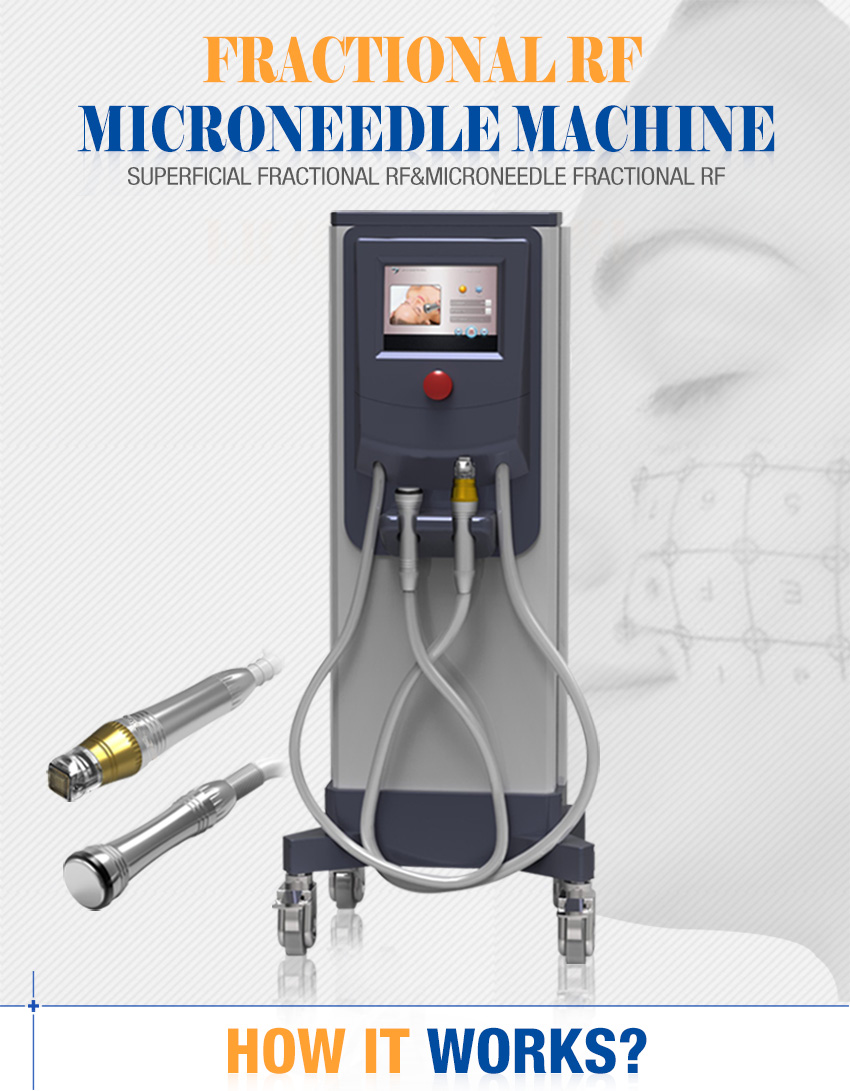 fractional rf for acne scars machine